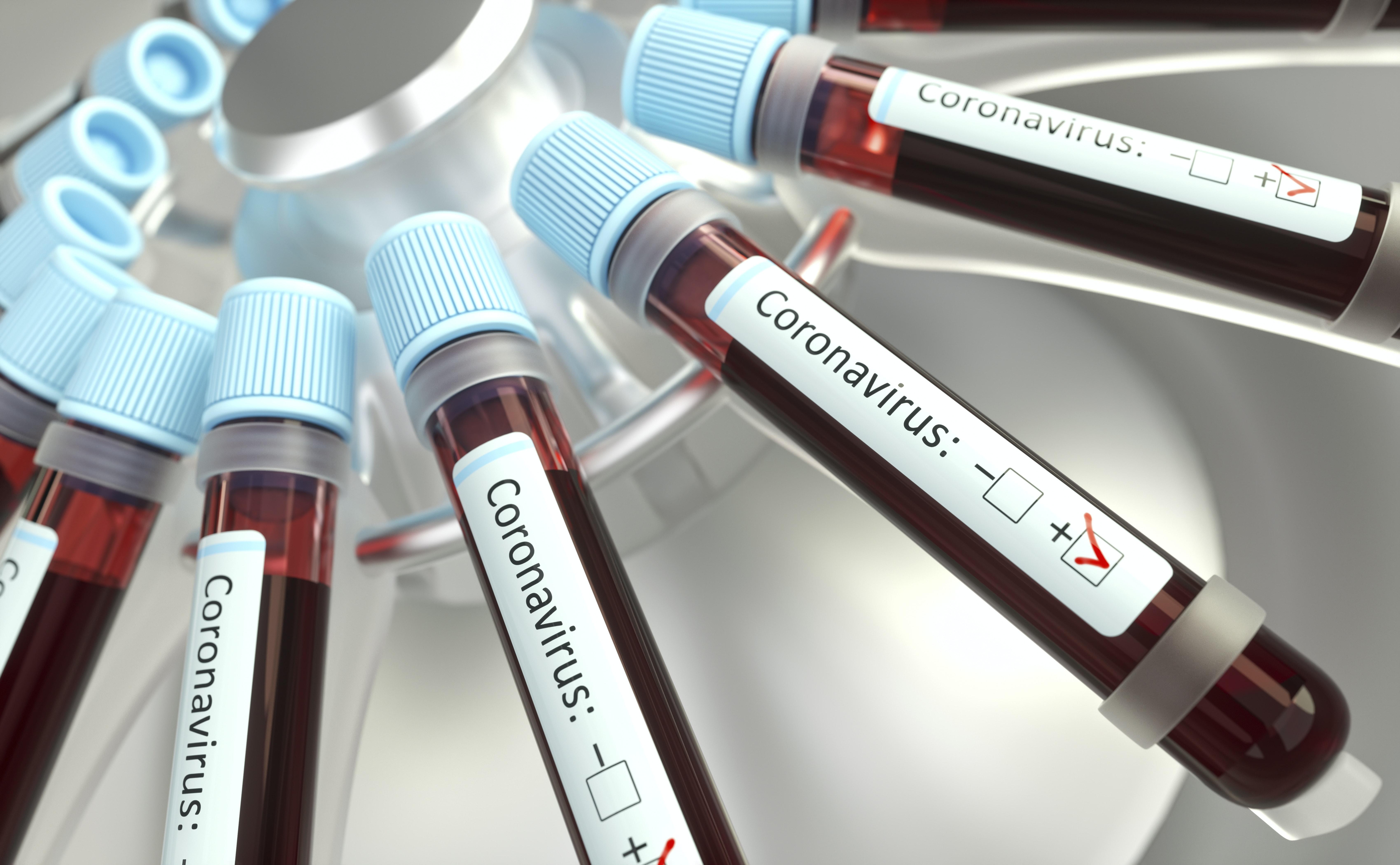 В Москве система искусственного интеллекта будет выявлять коронавирус